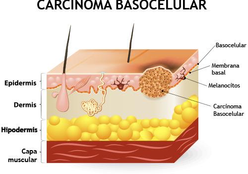 carcinoma_basocelular