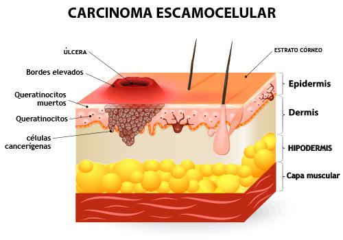 escamocelular